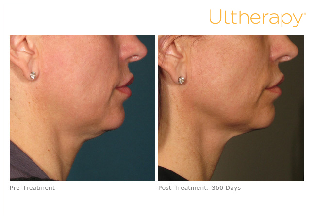 Ultherapy® - Cumberland Laser Clinic
